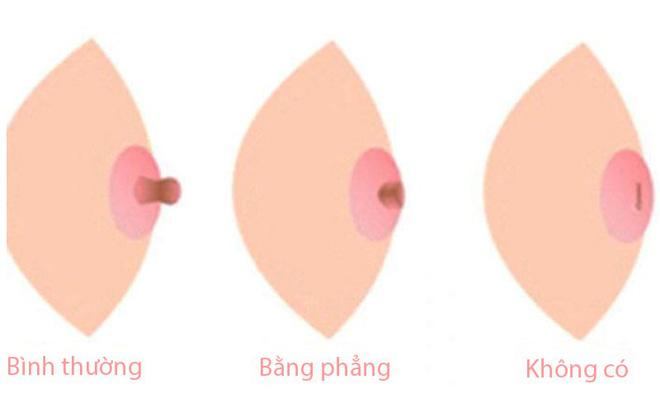 Thấy có những dấu hiệu này trên ngực thì hội con gái chớ chủ quan mà cần đi khám ngay - Ảnh 4