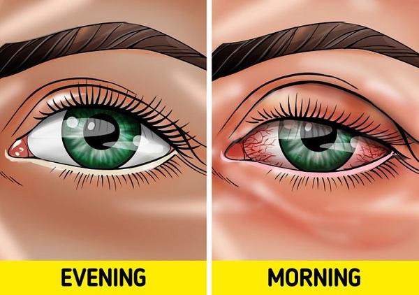 Điều gì xảy ra nếu không tẩy trang trước khi ngủ? - Ảnh 4