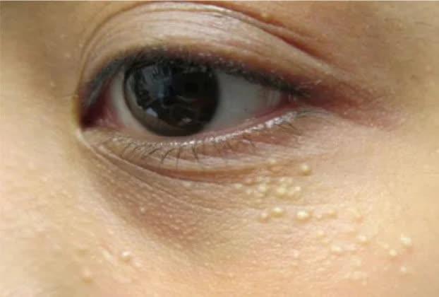 Những loại mụn tuyệt đối không được nặn vì có thể ảnh hưởng nghiêm trọng đến sức khỏe - Ảnh 4