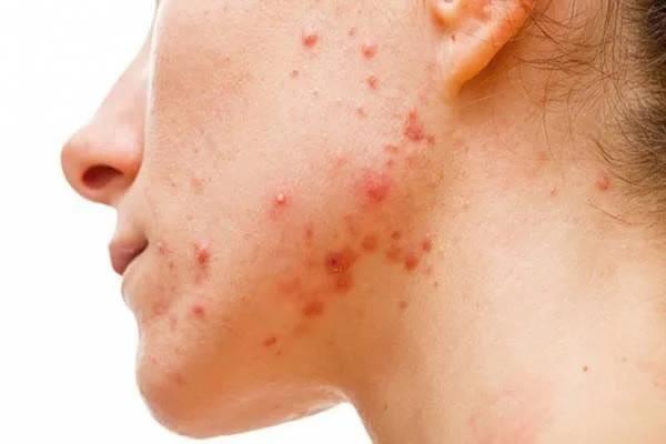 Những loại mụn tuyệt đối không được nặn vì có thể ảnh hưởng nghiêm trọng đến sức khỏe - Ảnh 5