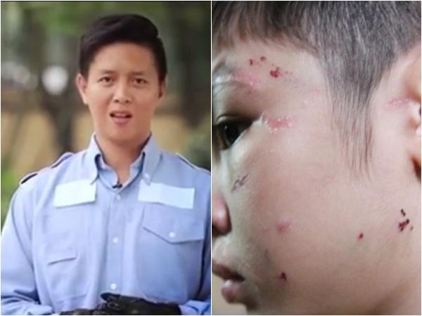 Bố bạo hành con 10 tuổi đến gãy xương sườn, rạn sọ não: Từng lên tivi và được đồng nghiệp nhận xét là người hiền lành