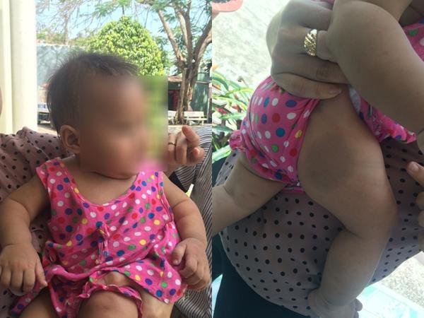 Thông tin bất ngờ vụ bé gái 8 tháng tuổi nghi bị người nhận nuôi đánh thâm tím mình mẩy