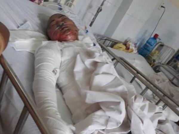 Vụ chồng tẩm xăng thiêu sống 3 mẹ con: Người mẹ từ chối chữa trị, đòi chết theo hai con