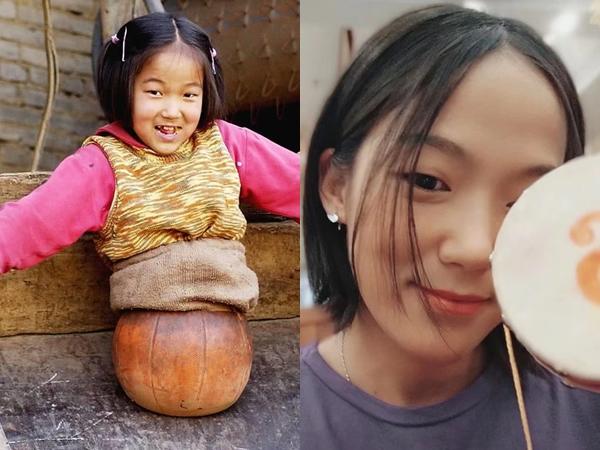 """""""Cô bé bóng rổ"""" bị cắt bỏ toàn bộ phần thân dưới khiến hàng triệu người quặn lòng năm xưa giờ sống thế nào?"""