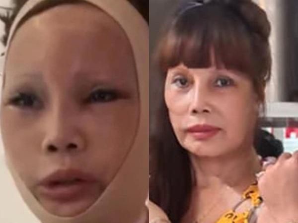 Cô dâu 62 tuổi vừa cấp cứu xong đã vội đi xăm hình, để lộ khuôn mặt sau phẫu thuật teo tóp, thiếu cân đối