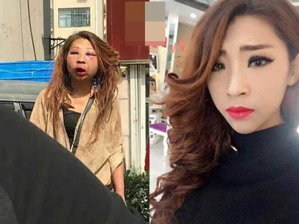 Cặp kè với đàn ông có vợ, hotgirl xinh đẹp bị đánh ghen đến mặt mũi biến dạng