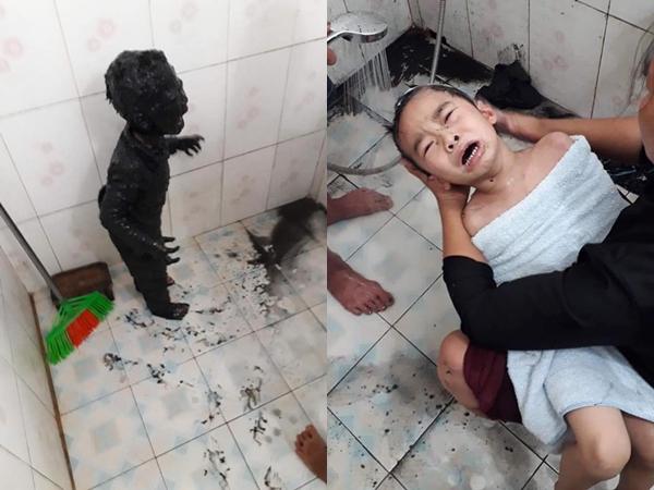Giải cứu thành công phi vụ đi tè thế kỷ: Cậu bé đi vệ sinh đêm bị ngã vào bùn gieo mạ, toàn thân đen sì không hở một chỗ trống