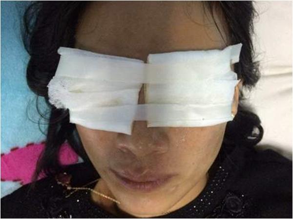 TPHCM: Ghen tuông mù quáng, vợ tạt axit vào mặt chồng - Ảnh 2