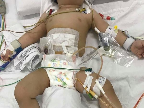Tình hình hiện tại của bé trai 11 tháng tuổi bị mẹ dùng dao đâm thủng ruột