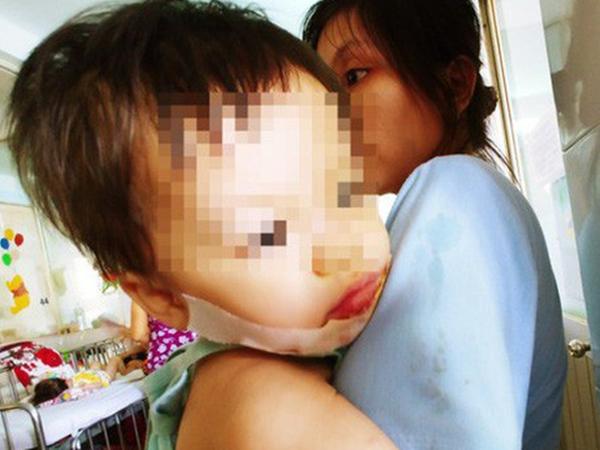 """Mẹ đơn thân """"tố"""" bảo mẫu làm con gái 18 tháng tuổi bị bỏng nặng ở mặt"""