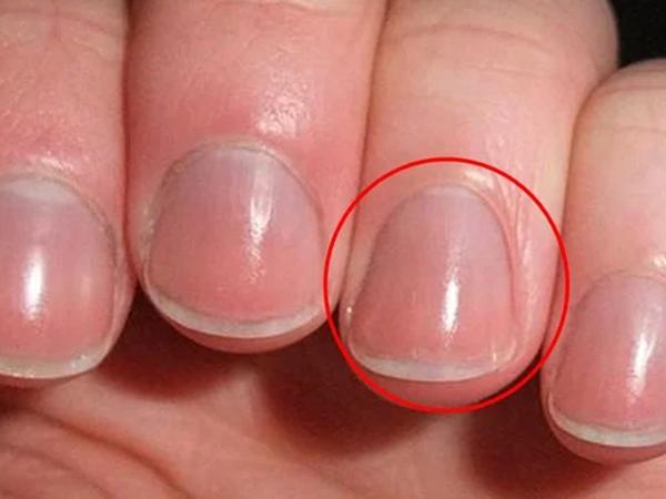 Người khỏe mạnh, sống thọ thường có 4 dấu hiệu trên bàn tay, bạn có bao nhiêu?