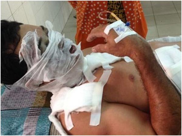 TPHCM: Ghen tuông mù quáng, vợ tạt axit vào mặt chồng