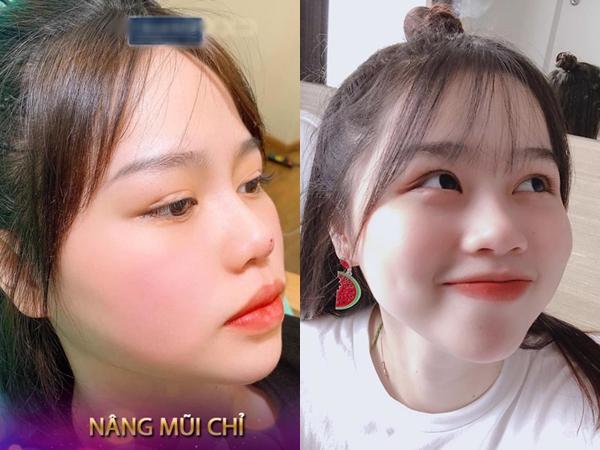 """Vừa bị một spa lấy ảnh không xin phép để quảng cáo dịch vụ nâng mũi, hot girl Huỳnh Anh đăng ngay story chứng minh mình """"mũi tẹt"""""""
