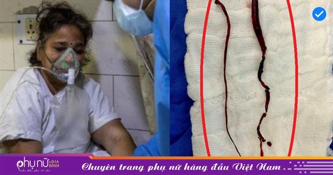 Sốc: Bác sĩ Ấn Độ chia sẻ khối máu đông trong chân bệnh nhân Covid-19, lý giải điều khủng khiếp đang xảy ra với người bệnh