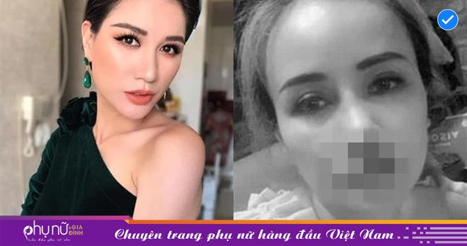 Trang Trần thẩm định cái mũi mới 'làm' 2 tháng đã gãy của 'cô Xuyến': 'Một năm cũng chưa sửa được'