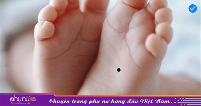 Người có 3 nốt ruồi BÍ MẬT này trên cơ thể chính là nơi ẩn chứa tài lộc, CHIÊU MỘ QUÝ NHÂN, tiền trăm vào tay sinh ra tiền tỷ