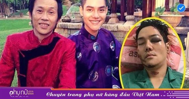 Bất ngờ về cuộc sống của con nuôi Hoài Linh từng bị tai nạn nghiêm trọng