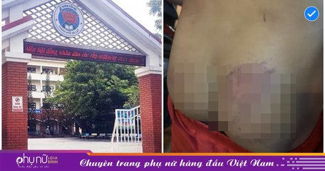 Lâm Đồng: Kỷ luật cô giáo đánh học sinh bầm tím mông, phụ huynh từng tìm đến nhà xô xát, định phát trực tiếp trên MXH