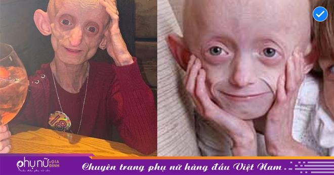 Cô gái 'dị nhân' mang ngoại hình cụ già 144 tuổi, sống một cuộc đời đầy nghị lực và ra đi thanh thản ở độ tuổi đẹp nhất
