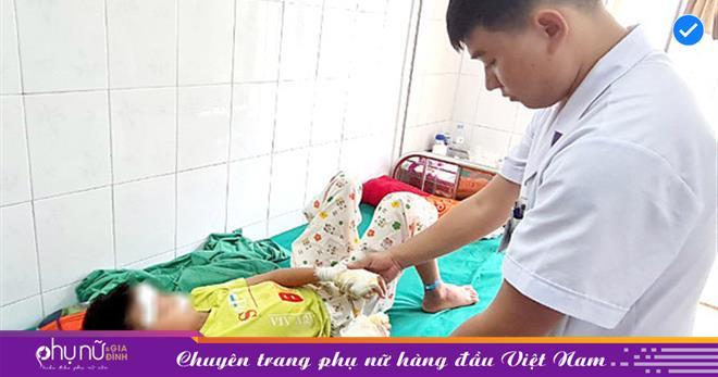 Bé trai 13 tuổi bị dập nát 2 bàn tay khi lấy pin làm đồ chơi, cha mẹ hãy dừng ngay việc cho con chơi đồ chơi này
