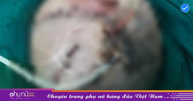 Thanh Hóa: Bé trai hơn 4 tuổi bị chó nhà cắn gây tổn thượng nặng vùng đầu