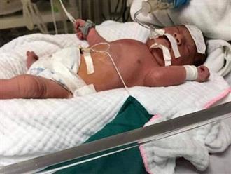 14 năm hiếm muộn, con vừa ra đời đã bị suy hô hấp, tràn dịch màng phổi