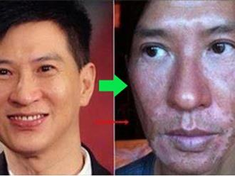 Mỹ nam TVB biến dạng gương mặt vì phơi nắng suốt 6 tiếng