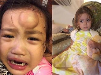 Con gái Vân Ốc sưng đầu, con Hồng Nhung gãy xương vì tai nạn trẻ nào cũng có thể gặp phải