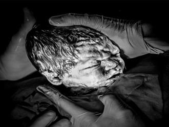 7 bức ảnh sinh nở khiến người xem run rẩy của bà mẹ 4 con
