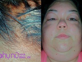 Kinh hãi người phụ nữ bị biến dạng mặt, có nguy cơ mù một bên mắt do dùng thuốc nhuộm tóc