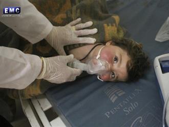 Rớt nước mắt khi nghe nữ bác sĩ kể về em bé Syria bị đốt cháy như 'vỏ cây xơ xác'