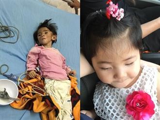 Sau gần 1 năm có 'mẹ nuôi', em bé Lào Cai đã tăng 10kg, bụ bẫm đáng yêu như thế này đây