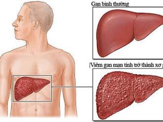 Xơ gan và những triệu chứng của bệnh mà bạn cần biết