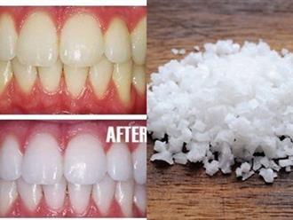 1 nhúm muối – 3 công thức làm trắng răng hiệu quả ngang ngửa đi nha sĩ, cao răng bật ra hết sạch, đơn giản mà bạn không biết