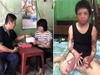 Chí Trung xót xa trước dung nhan của 'Hoa hậu' Thùy Dung sau khi bị chồng đổ xăng châm lửa đốt