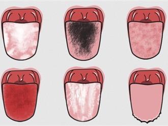 Nhìn màu lưỡi đoán được bệnh