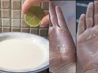 Cứ chạm vào dầu rửa bát là bong da tay hãy áp dụng ngay mẹo này để cải thiện nhé