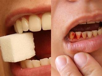 Đánh răng cả chục năm vậy mà có 10 vấn đề bạn luôn luôn hiểu sai, khiến răng vừa sâu vừa ố vàng mà hơi thở lại còn hôi nữa đấy