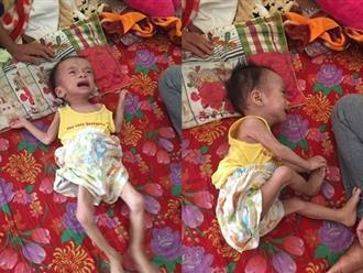 Từ kỳ tích của bé Phạm Đức Lộc: Mong phép màu đến với bé trai 1 tuổi bị u não, nặng chỉ 3 kg khiến ai nhìn thấy cũng xót xa