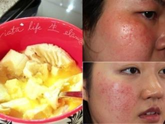 3 loại mặt nạ dưỡng trắng, trị mụn dành riêng cho da nhạy cảm, là phụ nữ nhất định phải biết
