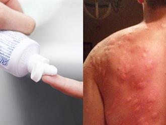 Nếu bị muỗi đốt thì đừng có gãi nếu không muốn da lở loét, mắc bệnh nguy hiểm, cứ làm việc này trong 1 phút đảm bảo hết ngứa ngáy khó chịu