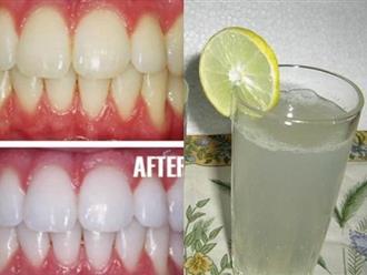 Chuẩn bị 1 quả chanh rồi làm theo cách này, cao răng cứng như đá cũng bật ra từng mảng, khỏi hẳn hôi miệng kinh niên