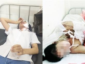 1001 kiểu cuồng ghen: Rúng động 2 nữ sinh bị tạt axit sau giờ tan trường