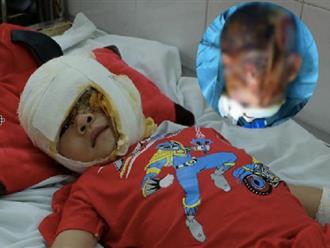 Hoàn cảnh đáng thương của bé trai 4 tuổi ngã vào bếp lửa, bố bị điếc nên không nghe thấy