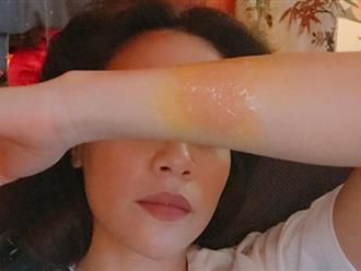 Tay bị bỏng, Hồ Ngọc Hà buồn bã cầu cứu cộng đồng mạng
