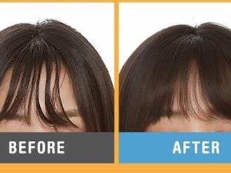 Để loại bỏ mái tóc bết dầu ngày nóng nực, đã có 3 vị cứu tinh này