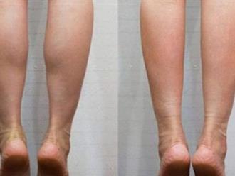 Chỉ 2 phút mỗi ngày, tôi đã giảm được đến 4,5cm mỡ bắp chân sau 1 tháng, ai không tin cứ làm theo cách này