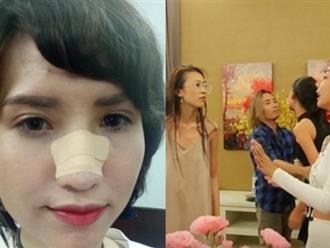 Thực hư chuyện Hồng Xuân rời Vietnam's Next Top Model vì bị đánh gãy mũi tại nhà chung