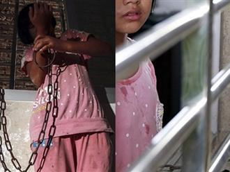 Bé gái 13 tuổi bị bà ngoại xích tay nhốt trong phòng mỗi ngày và câu chuyện đau lòng phía sau