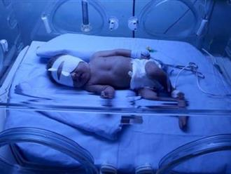 Bé sơ sinh 7 ngày tuổi tuổi cận kề tử thần chỉ vì người đến thăm vô tư bế nựng